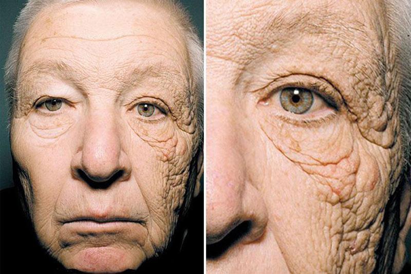 مصرف روزانه ضد آفتاب